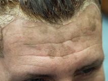 Male forehead stained during hair coloring. royalty free stock photo