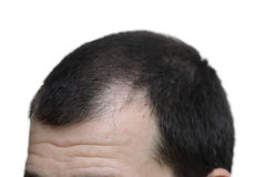 Male with hair loss symptoms  on white background Stock Photos