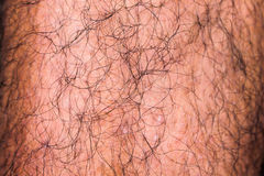 Male Hairy Leg Detail. Surface Royalty Free Stock Image
