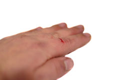 Male hand with bleeding finger isolated on white background royalty free stock image