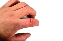 Male hand with bleeding finger isolated on white background royalty free stock photo