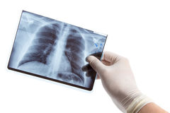 Male hand in medical glove holding lung radiography Royalty Free Stock Photo