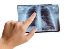 Male hand pointing on lung radiography. Isolated on white background stock photo