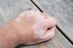 Male hand with vitiligo skin condition. Characterized by white unpigmented patches or blotches Royalty Free Stock Photography