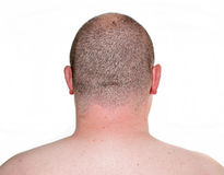 Male head close up from behind. Photo male head close up from behind Stock Images