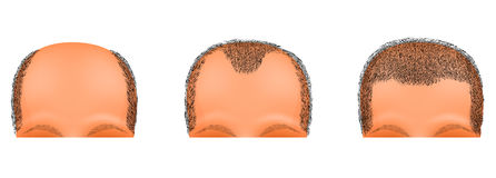 Male head, hair loss suffers. hair transplantation. Illustration of a male head suffering from baldness. hair transplantation Stock Photo