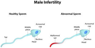 Male Infertility. A diagram showing male infertility Stock Images