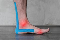 Male leg with ankle sprain, taped with specialized therapeutic cotton tape, sports injury. Tendonitis, strain, fracture stock photography