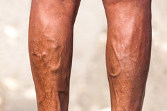 Male legs varices lower extremity disease Royalty Free Stock Image