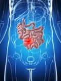 Male liten inälva - cancer stock illustrationer