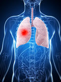 Male lung - cancer vektor illustrationer