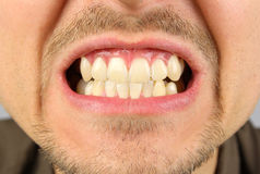 Male mouth, tooth grin. Clenched teeth royalty free stock image