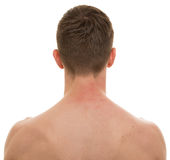 Male Neck Back isolated on white - REAL Anatomy Royalty Free Stock Image