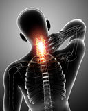 Male neck pain Stock Photos