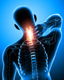 Male neck pain Stock Photo