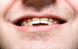 Male with overbite wearing braces and smiling.  Royalty Free Stock Photography