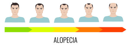Male pattern alopecia Royalty Free Stock Images