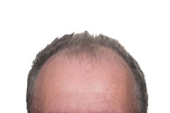 Male Pattern Baldness. Balding Head Showing Male Pattern Baldness on White Background Royalty Free Stock Photography