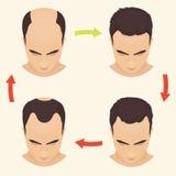 Male pattern baldness set Stock Photography