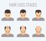 Male pattern baldness stages Royalty Free Stock Photography