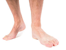 Male person with hairy legs. Walking towards, against white background Royalty Free Stock Images