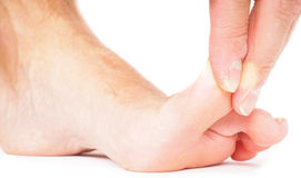 Male person pulling big toe backwards isolated on white Stock Images