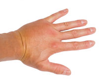 Male person showing swollen knuckles on white Royalty Free Stock Photography