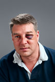 Male portrait with bruised eye. Portrait of a Caucasian male with bruised black eye Stock Photo