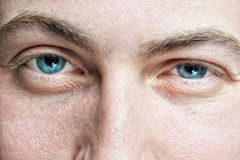 Male with problematic skin. Closeup of young man's blue eyes with problematic skin and selective focus Royalty Free Stock Photos