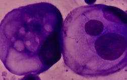 Malignant cells in pleural fluid. Malignant cells in pleural fluid analysis with microscope Royalty Free Stock Photo