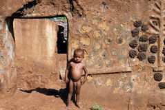 Malnourished Children in India. June 02,2011 Rampurhut,Birbhum,West Bengal,India,Asia- A malnourished child in a tribal village of West Bengal Royalty Free Stock Image