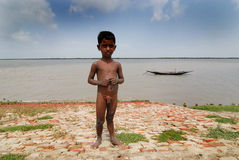 Malnutrition in India. April 20,2012 Amlamethi,Gosaba,Sundarban,West Bengal,India,Asia-The World Bank estimates that India is ranked 2nd in the world of the Royalty Free Stock Image