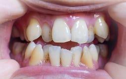 Malocclusion, επιβάρυνση και των ανώτερων και χαμηλότερων δοντιών στοκ φωτογραφίες
