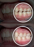 Malocclusion after and before orthodontic treatment. After and before orthodontic treatment Royalty Free Stock Image