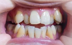 Malocclusion, Overcrowding of both upper and lower teeth. Uneven and yellow stained teeth of both jaws in Asian, Myanmar Man stock photos
