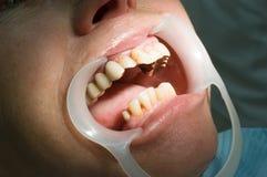 Malos dientes Foto de archivo libre de regalías