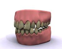 Malos dientes de la higiene Fotografía de archivo libre de regalías