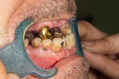 Malos dientes pacientes en la macro del primer del dentista del dentista Carie, el fumar del daño de la placa fotos de archivo libres de regalías