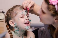 Mama brakuje zelenkoj rany w dziecku z chickenpox Obrazy Stock