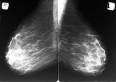 Mammogram stock foto