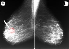 Mammogram with breast cancer Stock Image