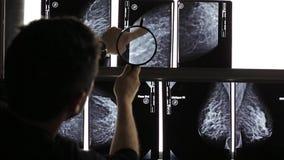 Mammogram X Ray Analysis stock footage