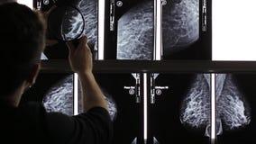 Mammogram X Ray Analysis