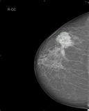 Mammography. Xray mammography image showing breast cancer Royalty Free Stock Photo