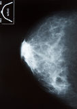Mammography Royalty Free Stock Image