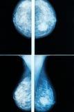 mammography Fotografia de Stock Royalty Free