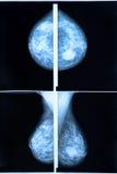 mammography Imagens de Stock