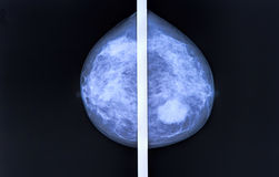 Mammography. Breast scan X-ray image Stock Images