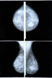 Mammography. Breast scan X-ray image Royalty Free Stock Images