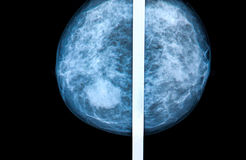 Mammography. Breast scan X-ray image Stock Image